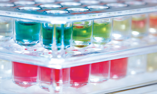 Successfully Automating the Microbiology Laboratory