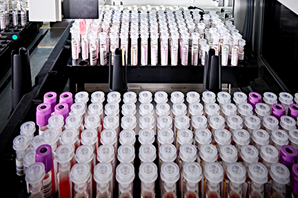 Dozens of patient sample tubes recapped and lined up for sample volume detection by DxA 5000