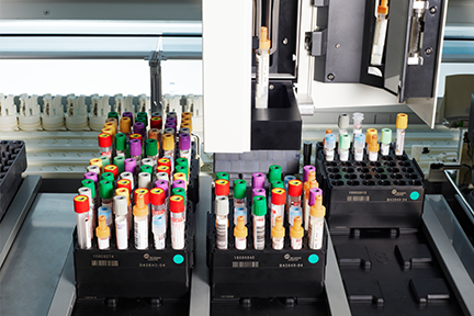 Tubes of various heights and cap colors loaded in racks for DxA 5000 inspection