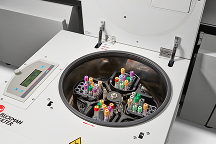 Tubes loaded into DxA 5000 dual centrifuges