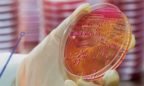 Microbiology bacteria culture