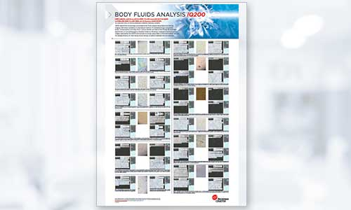 Body Fluids Analysis iQ200 Poster